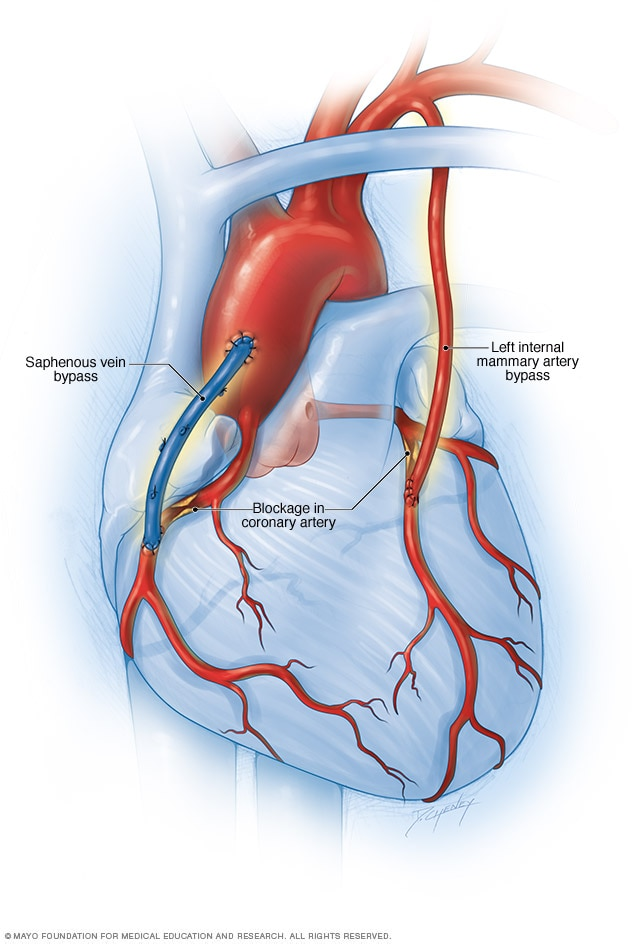 Coronary artery disease - Diagnosis and treatment - Mayo Clinic