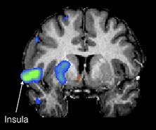 Areas of cortical activation resulting from DBS for OCD