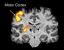 Areas of cortical activation resulting from DBS for Tourette