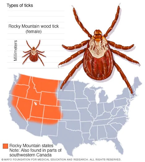 Slide Show: Guide To Different Tick Species And The
