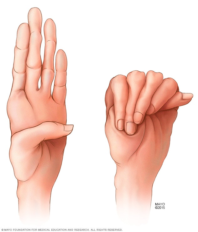 Abnormally long fingers common in Marfan syndrome