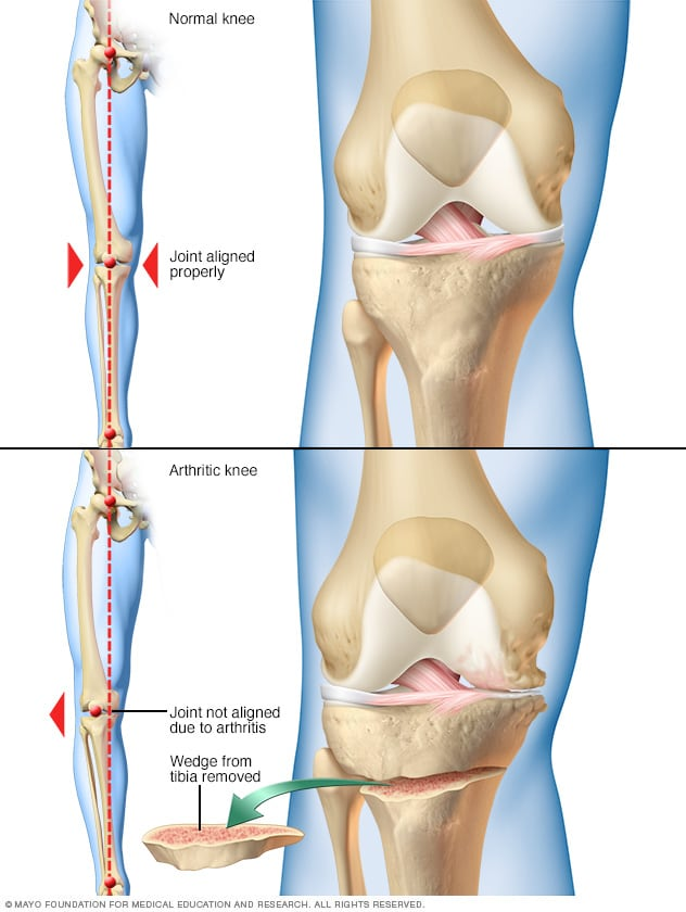 Illustration showing knee osteotomy