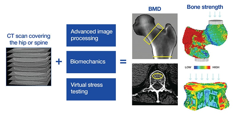 Process by which CT images are analyzed