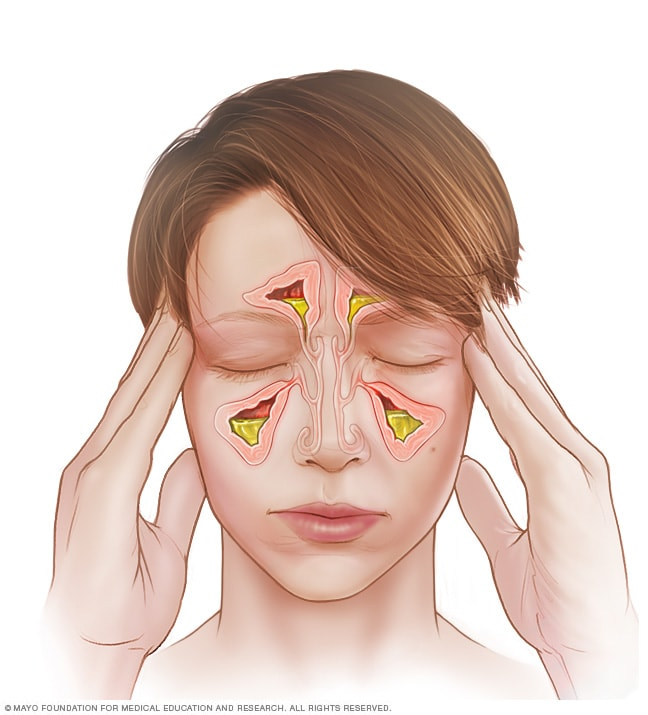 Illustration showing acute sinusitis