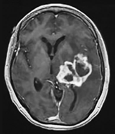 Glioma New Classification And The Search For Treatment