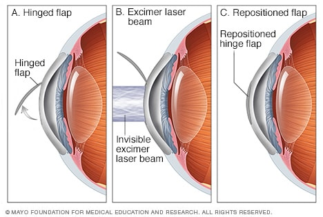 Illustration of LASIK eye surgery