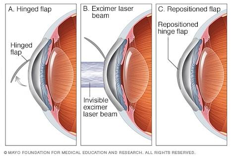 LASIK eye surgery - Mayo Clinic