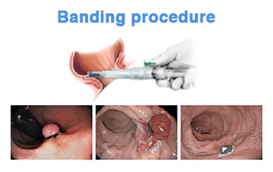 Banding device inserted into distal rectum, then evolution of banded tissue over time