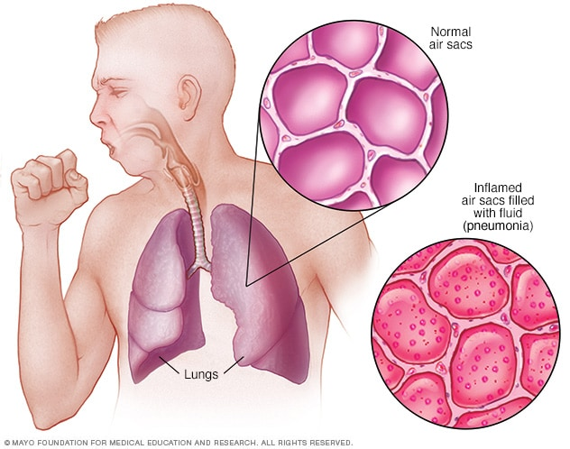 Lungs with pneumonia