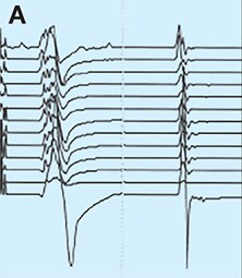 Normal motor response in evoked potentials monitoring