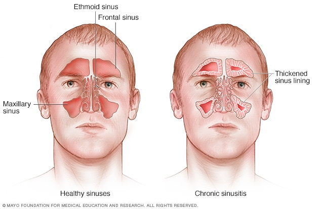 Endoscopic Sinus Surgery - procedure, recovery, pain, complications, time, infection, cells, risk