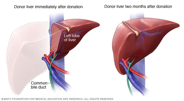 Living-donor liver organ regeneration