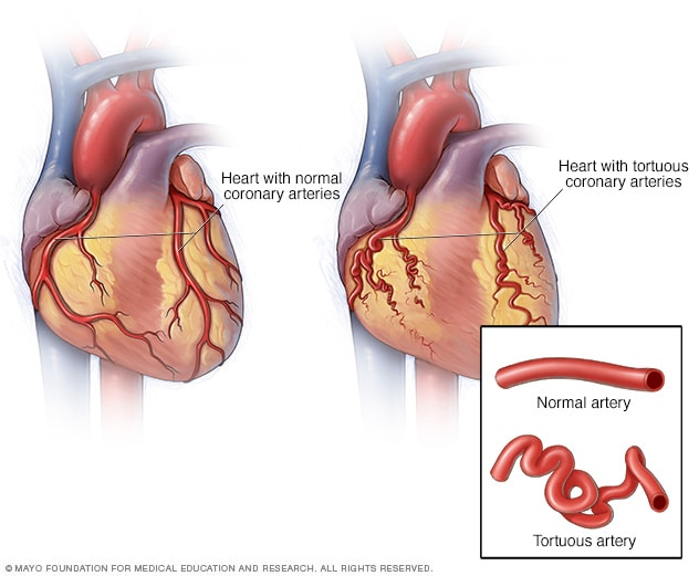 Heart with tortuous coronary arteries - Mayo Clinic