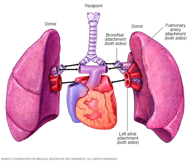 Double-lung transplant