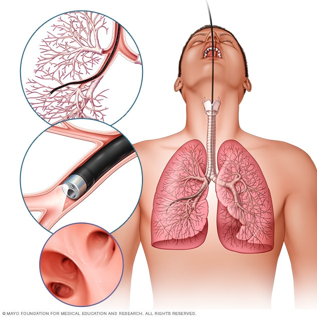 Lung Cancer Blood Test >> Lung Cancer Diagnosis And Treatment Mayo Clinic