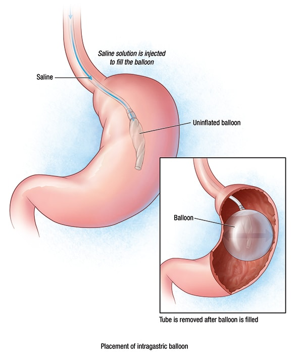 Intragastric Balloon A Re Emerging Approach For Obesity