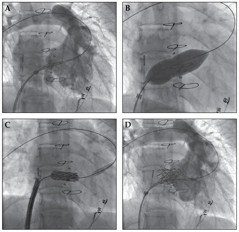 Tricuspid valve-in-valve implantation