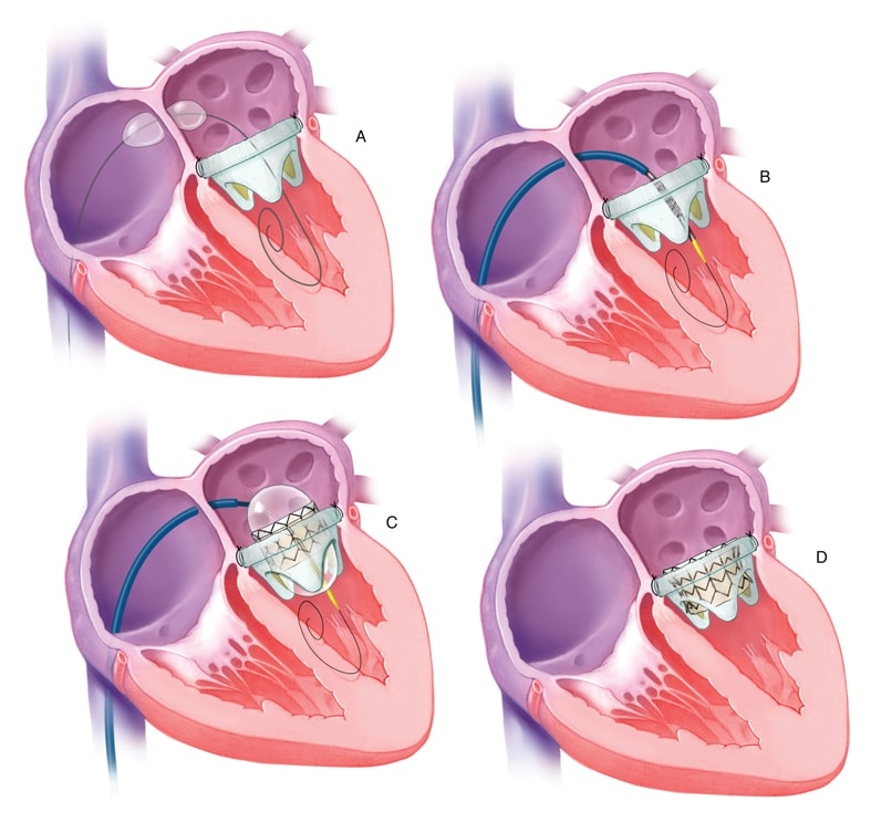Transvenous transseptal mitral valve-in-valve procedure