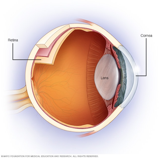 Illustration showing simplified anatomy of the eye