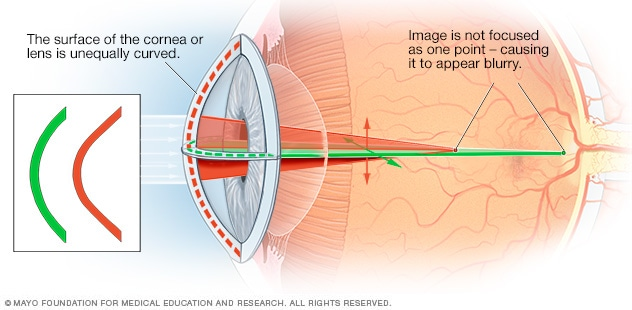 astigmatism - symptoms and causes - mayo clinic, Skeleton
