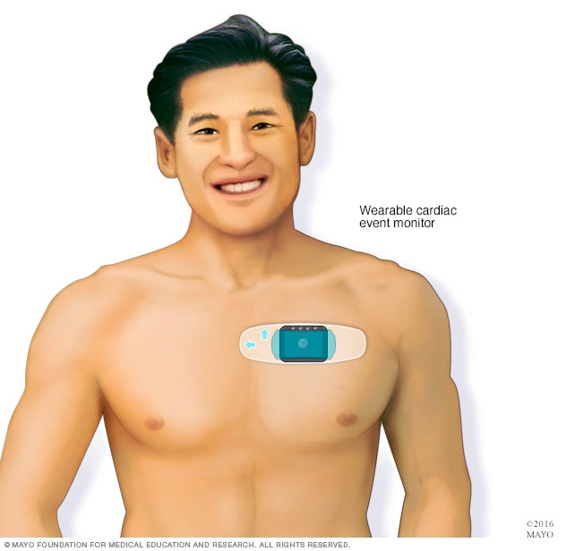 Cardiac event monitor