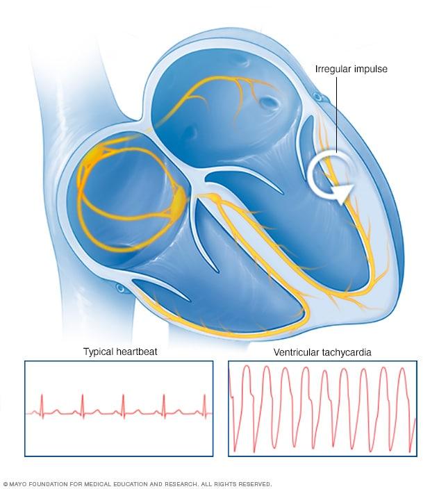 eabd622130566 عدم انتظام دقات القلب البطيني - الأعراض والأسباب - Mayo Clinic (مايو ...