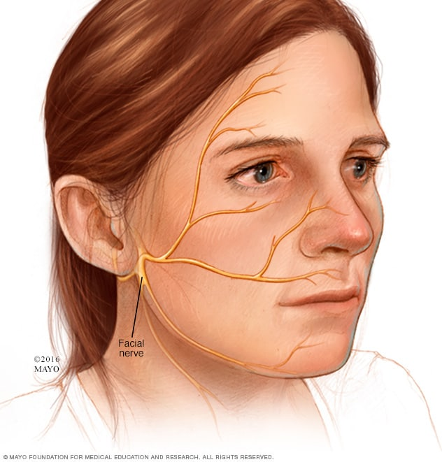 Image of facial nerve