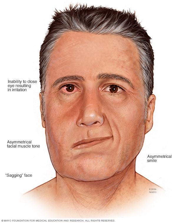 Illustration showing facial paralysis