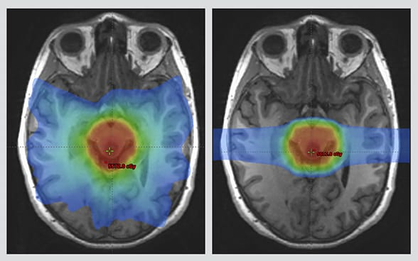 Proton Beam Therapy In Minnesota And Arizona For Medical