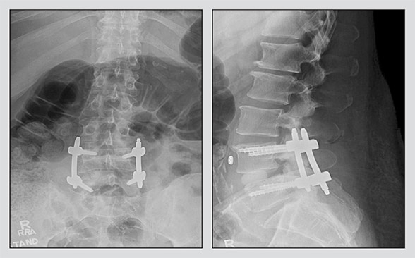 Percutaneous screws and percutaneous interbody fusion