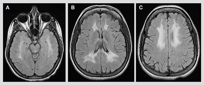 MRI of girl with metachromatic leukodystrophy