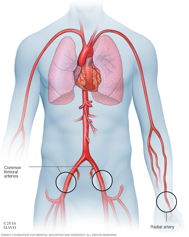 Illustration showing catheter  approaches in a cardiac catheterization