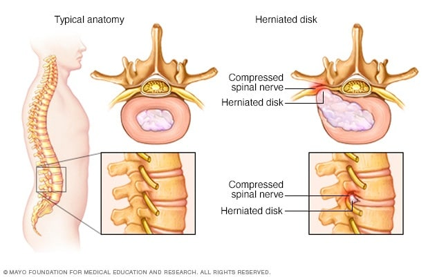 Herniated spinal disk