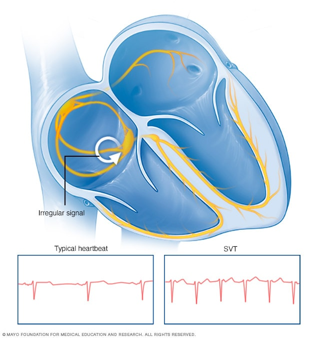 What Is Svt >> Supraventricular Tachycardia Symptoms And Causes Mayo Clinic