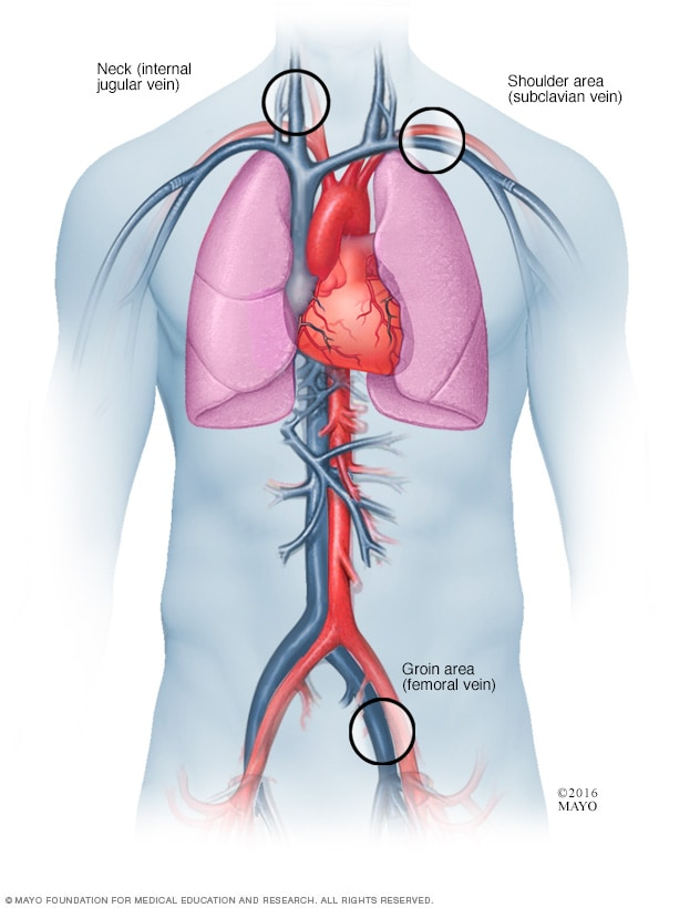 Where catheters are inserted for cardiac ablation