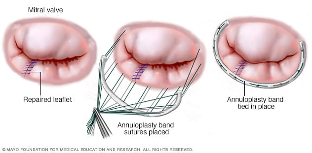 An annuloplasty