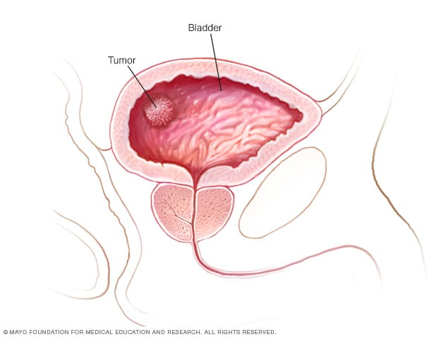 Illustration showing a tumor on the bladder wall