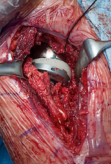 Short stem uncemented reverse arthroplasty placement