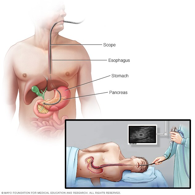 Ultrasound device being threaded through an endoscope into the abdomen