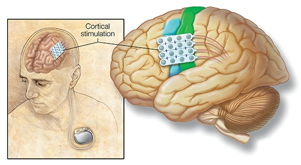 Electrodes in the brain connect to a generator implanted in the chest