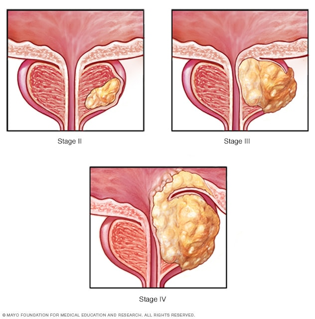 Image showing stages of prostate cancer