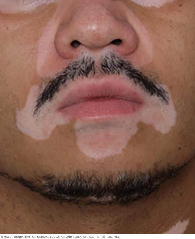 Vitiligo patches on the face