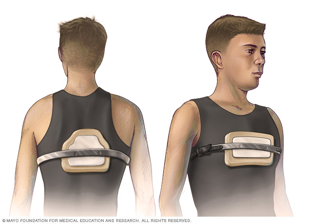 An adolescent wearing a chest brace