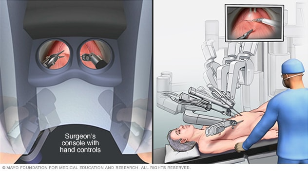 Surgeon's console and robotic instruments for cystectomy