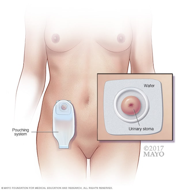 Urostomy stoma and pouching system