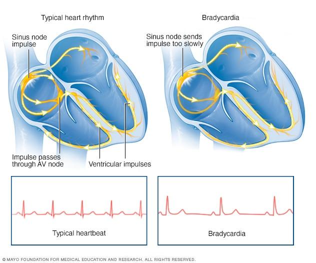 Bradycardia - Mayo Cli...