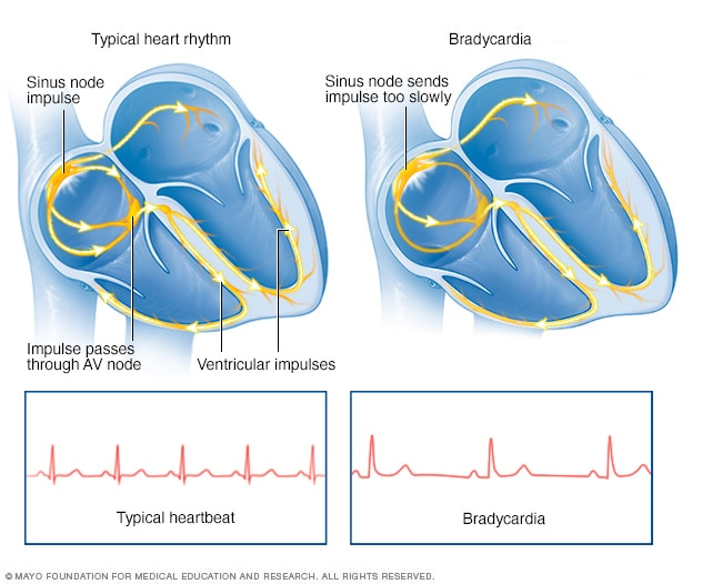 Bradycardia - Symptoms and causes - Mayo Clinic