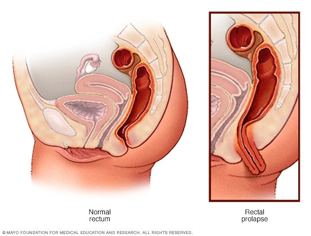 Rectal Prolapse Symptoms And Causes Mayo Clinic