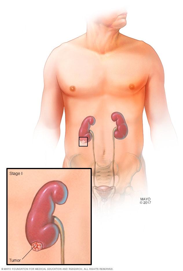 creo que tengo cáncer de próstata ¿qué debo hacer reaction