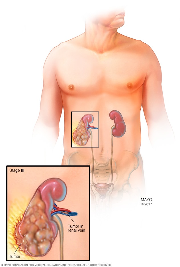 Kidney Cancer Diagnosis And Treatment Mayo Clinic